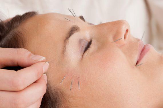 acupuntura estetica
